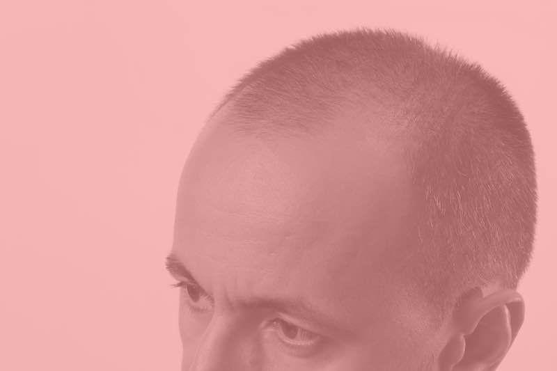 Haarverlust Haarwuchs Needling Dermaroller Nadeln cutique Wien 1030 Preise Kosten